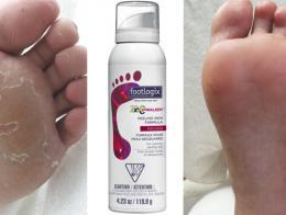 Footlogix Peeling Skin Formula-pìna pro loupající se pokožku (7)